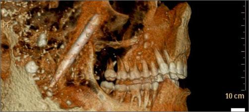 Жители Помпеи: зубы, лучше чем у нас